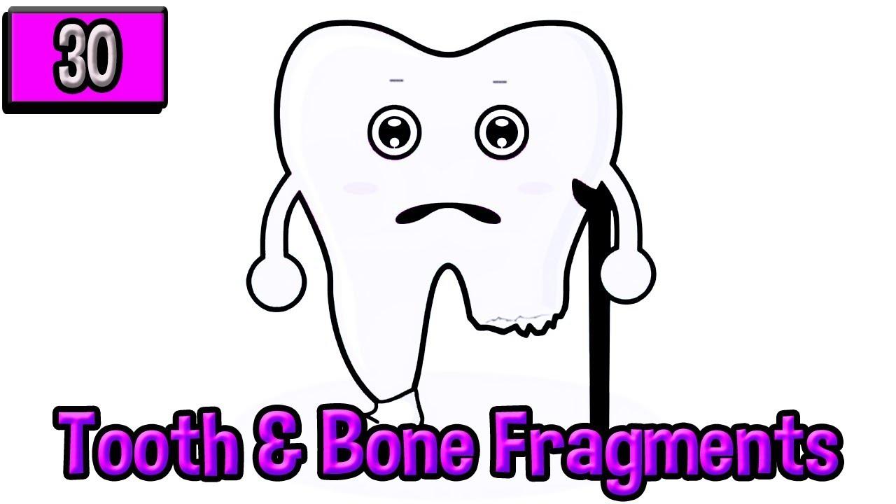 Dentures: Tooth Fragments & Bone Spurs