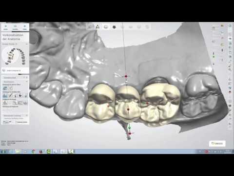 Design einer okklusal verschraubten Brücke mit dem 3Shape Dental Designer 16.1.0