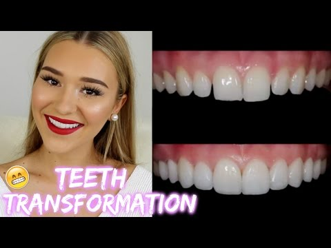 I Got Porcelain Veneers! | SHANI GRIMMOND