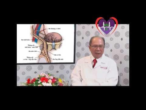 Cách điều trị vô sinh do giãn tĩnh mạch tinh   Bác Sĩ Channel