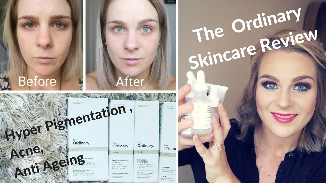 THE ORDINARY | SKINCARE Review | 2 Month Skincare Review ...