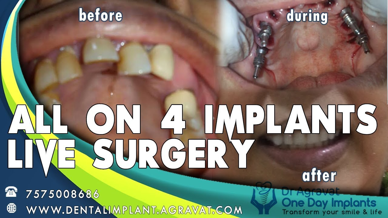 All On 4 Dental Implants India - Cost   Payment Options