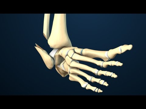 Ankle Fracture Surgery | Nucleus Health