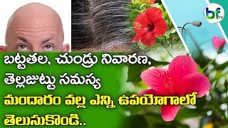 Hair Care Therapy | Mandara Oil for Hair Loss | Hibiscus and Onion for Hair Care | Beauty Tips