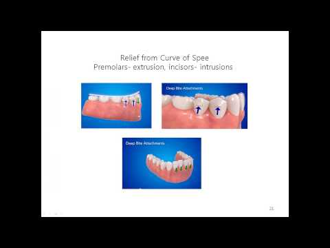 Clear aligner power button tooth movement method 2