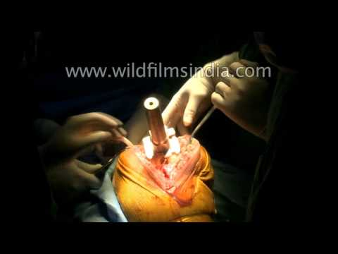 Complete Knee Replacement Surgery : watch the entire process