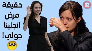 حقيقة مرض انجلينا جولي
