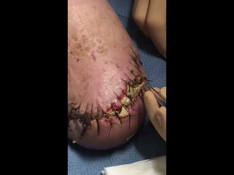 Better than pimple popping!!!-Debridement of Wound