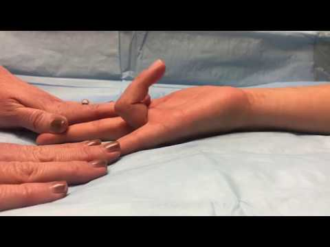 What to Do When You Cut Your Finger and It Won't Bend