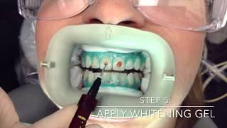 Professional In-Office Teeth Whitening by Mint Dental OC in Yorba Linda, Orange County