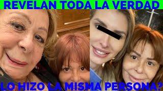 Por Querer Lucir Joven Silvia Pinal Podría Partir: Plástico En Cara Por 90$ Mil ¿igual Alejandra?