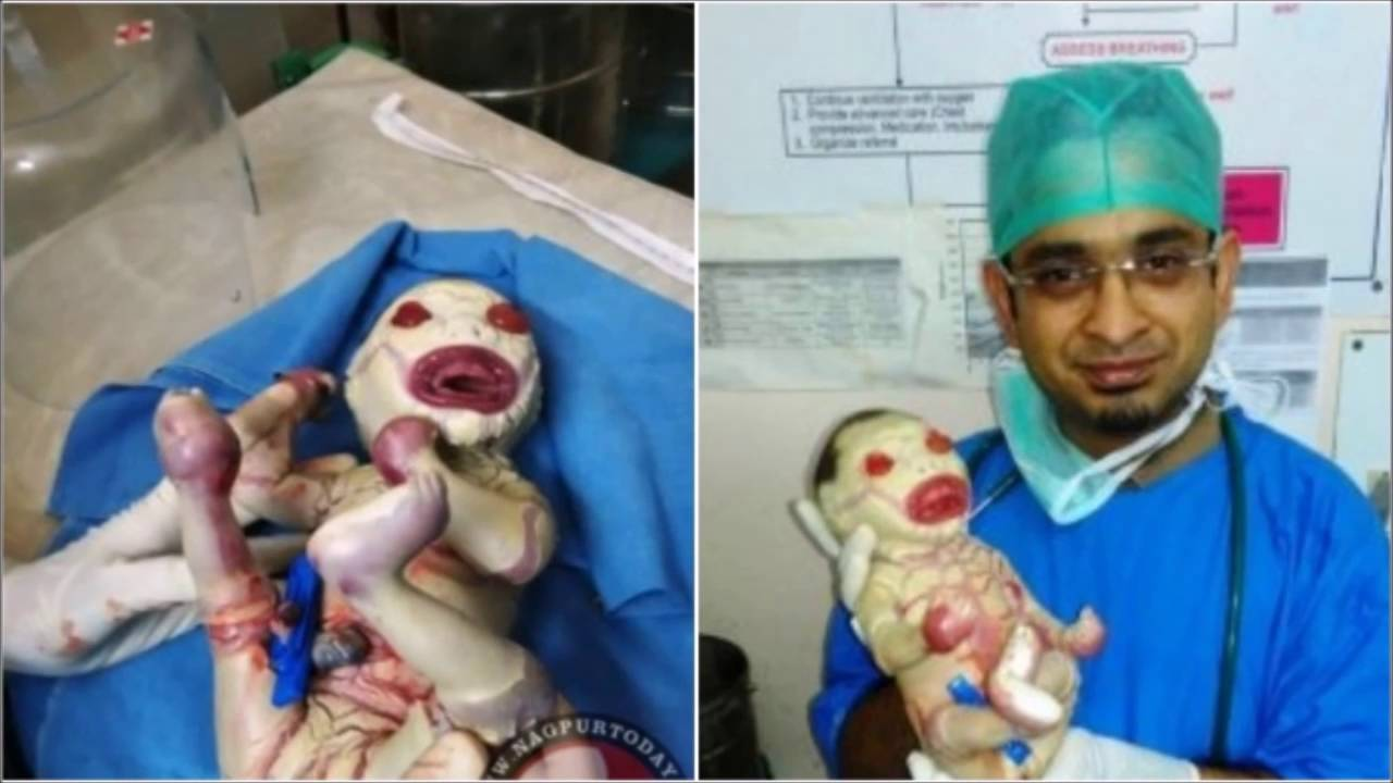 Baby born with no external skin, India's first case of ...