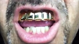 Eight Tooth Grillz Fitting Instructions