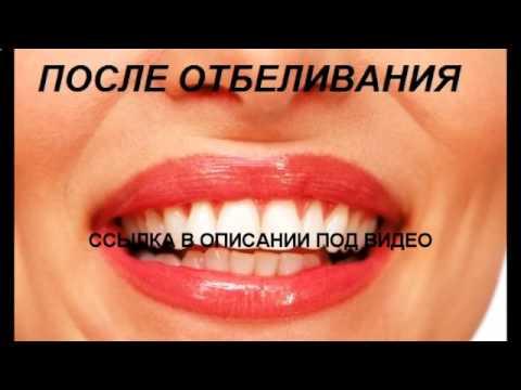 global white система  для отбеливания зубов отзывы