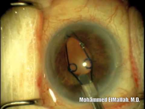 Malyugin Ring Insertion - YouTube