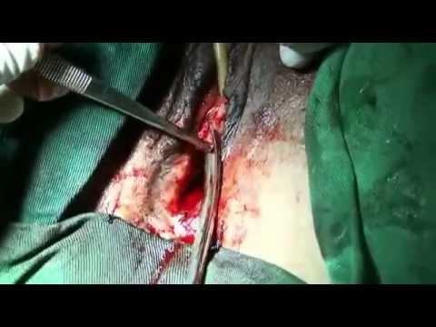 vulvar vestibulitis steroid cream