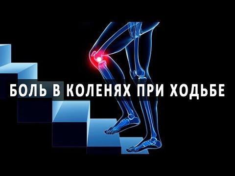 От чего болят колени при ходьбе