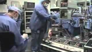 Koroner Arter Bypass Ameliyatı video izle