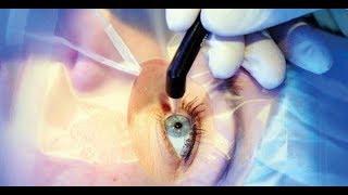جراح عيون: يجب على مريض السكر فحص قاع العين كل عام.. فيديو
