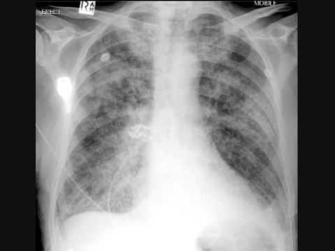 Chest x ray interpretation pulmonary edema heart attack youtube