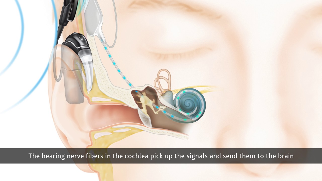 cochlea diagram quiz [ 1280 x 720 Pixel ]