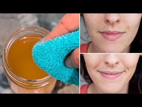 Lavati Il Viso Con l'ACETO Di Mele Per 5 Giorni e Guarda Cosa Succede Alla Tua Pelle
