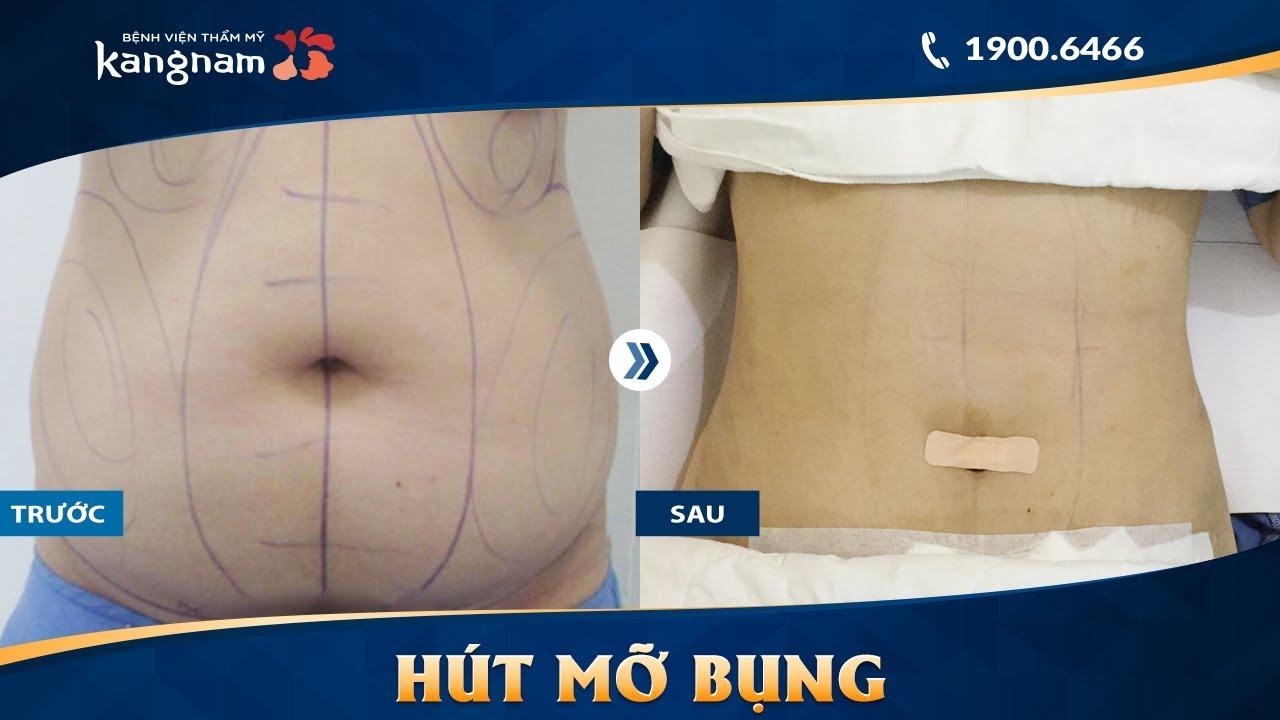 Hút mỡ bụng trên, dưới, eo và tạo hình thành bụng tại Kangnam