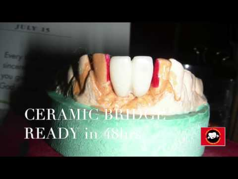 best-dental-implant-centre-in-chennai--missing-front-tooth-replacement-with-implants