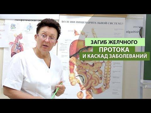 Загиб желчного протока и каскад заболеваний