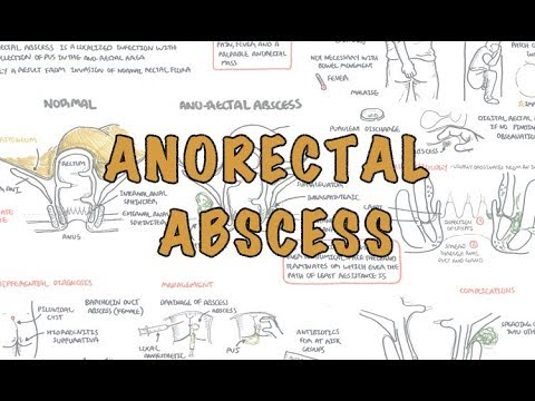 Regret, what is anal abscess