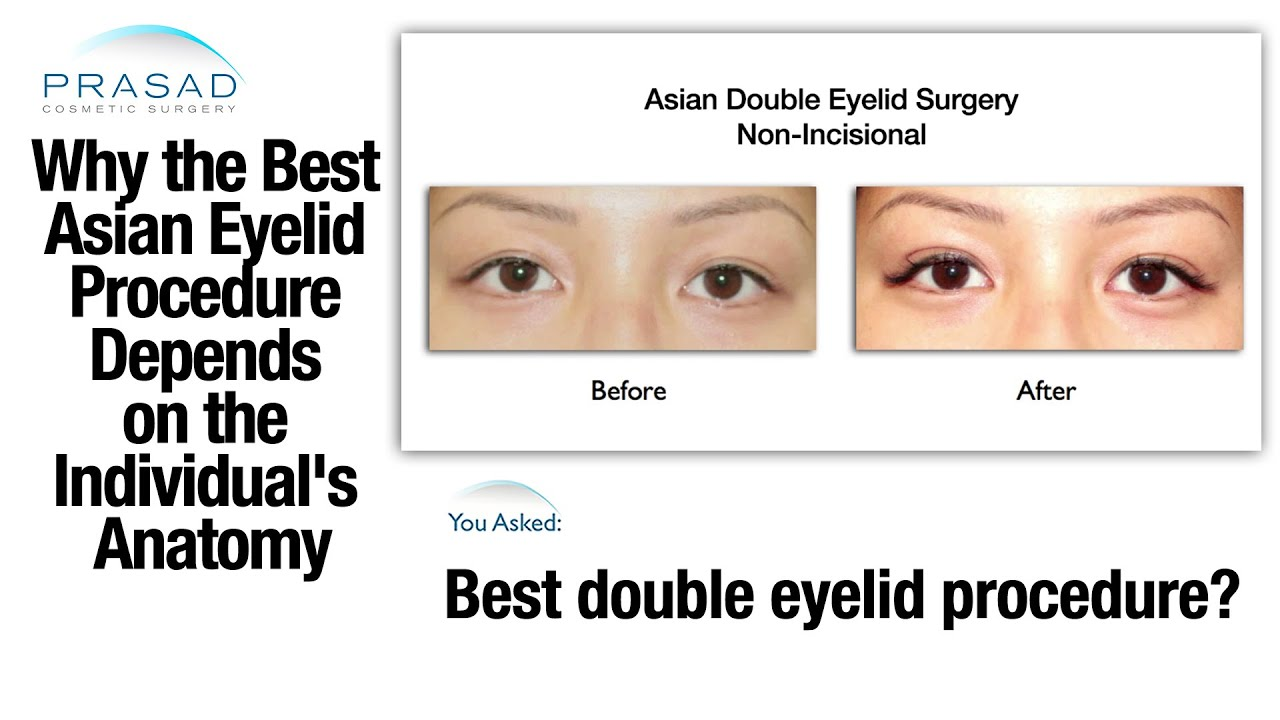 The Right Asian Double Eyelid Surgery Technique Depends on an ...