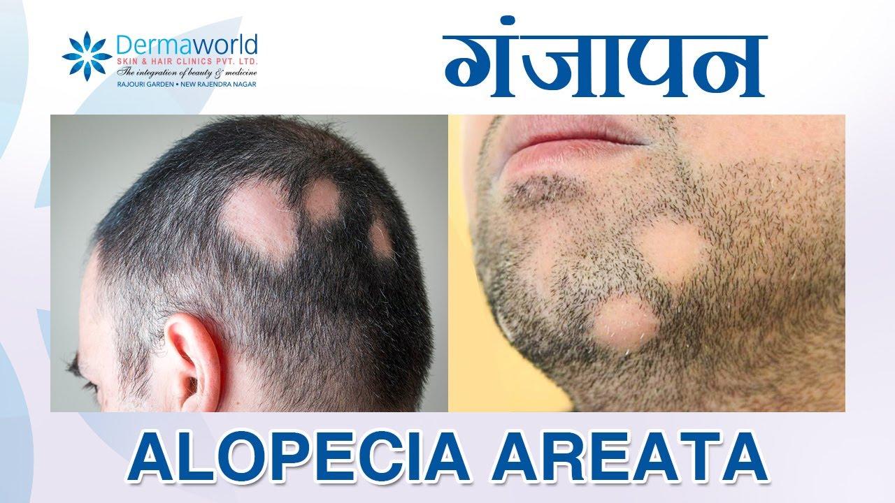 féreg alopecia kezelése)