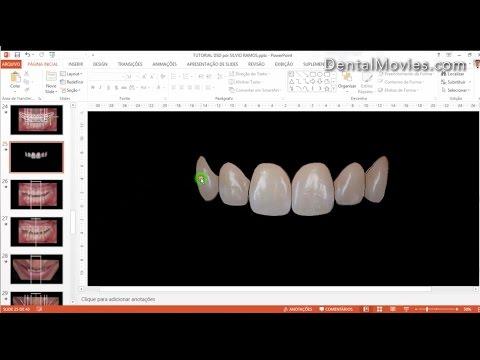 Digital Smile Design - Christian Coachman & Livio Yoshinaga - PART 4/4