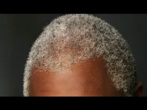 How To Care For Gray Hair In African-Americans : Health Advice