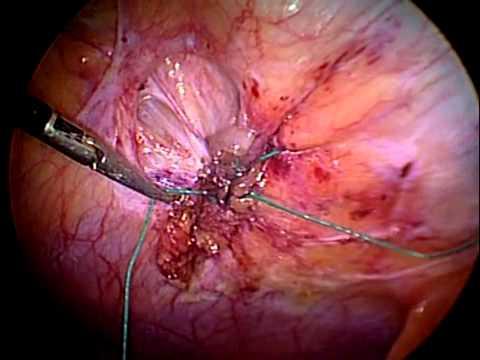 После вентральной грыжи, после ее операции и удаления