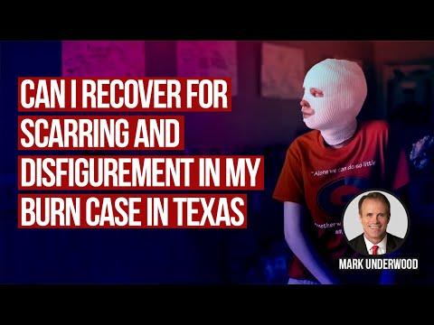 Can I recover for scarring and disfigurement in Texas burn case?
