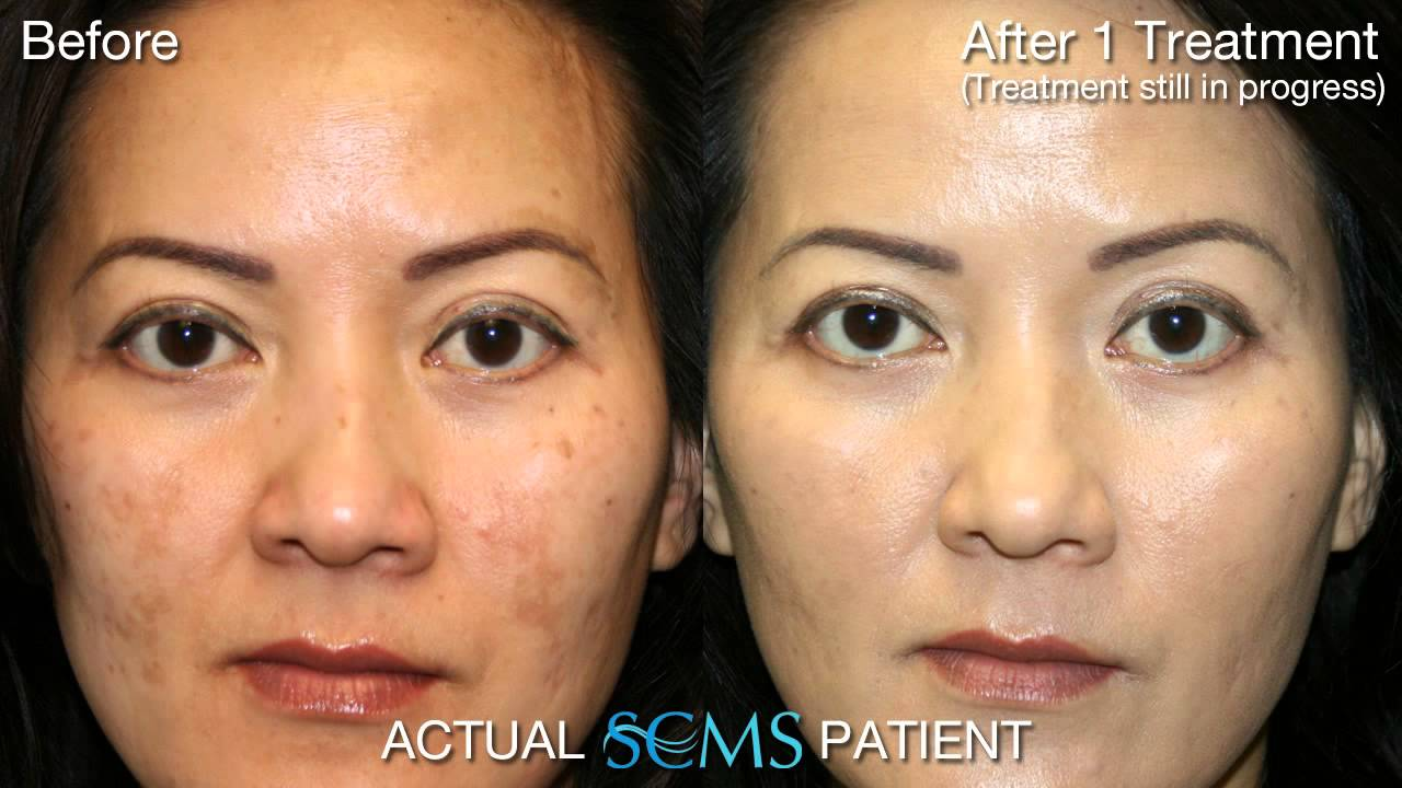 June 2013 Laser Skin Resurfacing Female Olive Skin