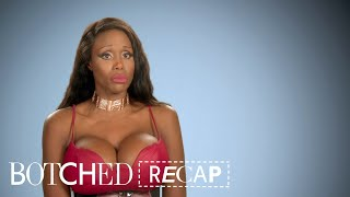"""Botched"" Recap: Season 4, Episode 20 