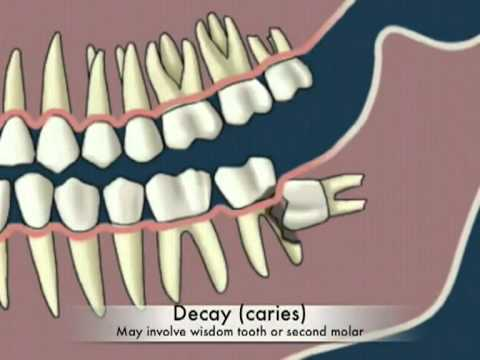 Tại sao phải nhổ răng khôn - Why extract wisdom teeth