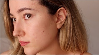 how much does accutane cost