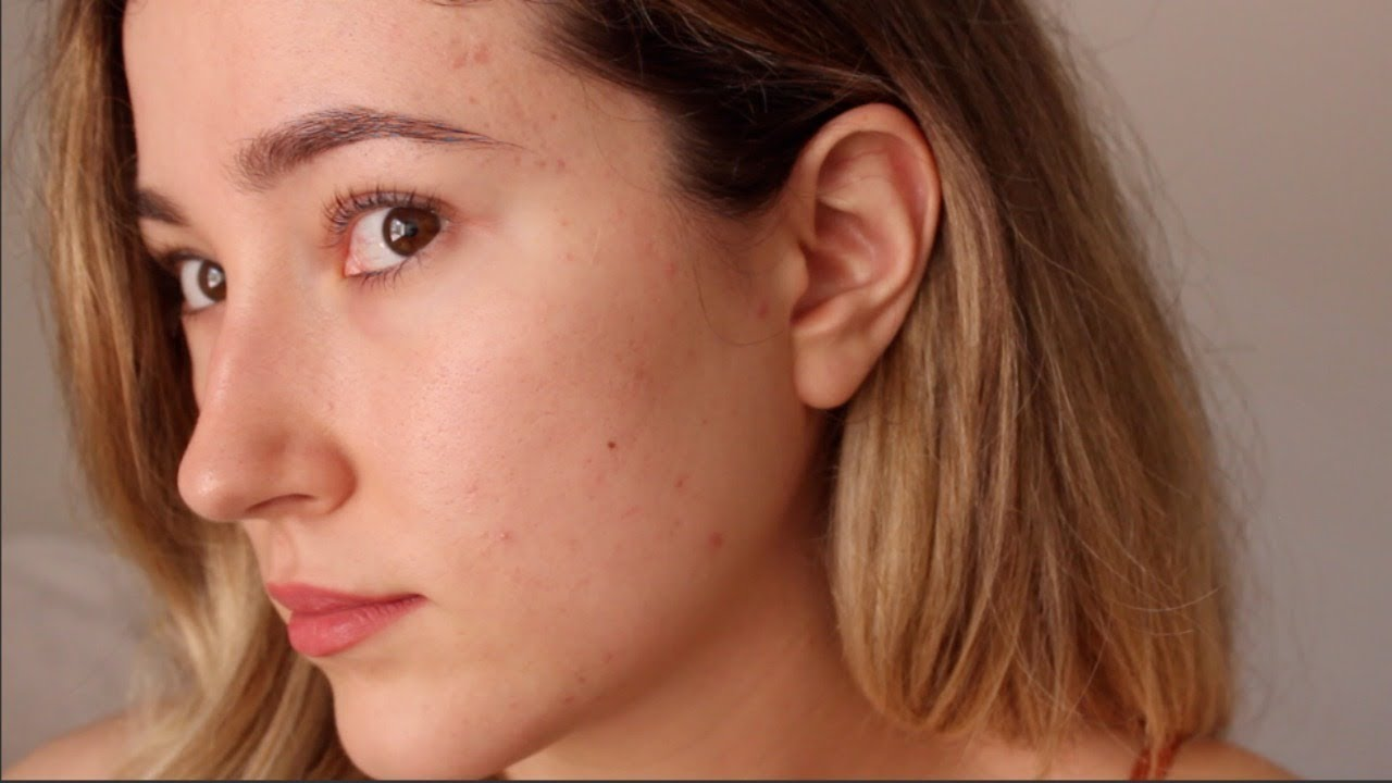 One Year Off Accutane: My Acne Is Back  An Emotional Update