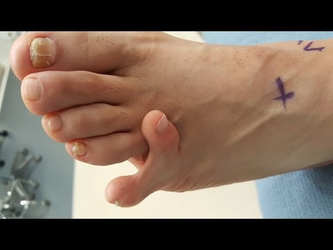 Surgery to remove extra digit, toe on the foot