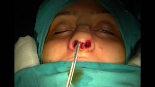 Açık Teknik Burun Estetiği  (Rinoplasti) Op. Dr. Tamer Şakrak