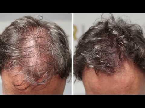முடி அடர்த்தியாக ரொம்ப நெருக்கம்மா  வளர 5 நிமிடம் ஹேர் பக் -tips for growing long hair