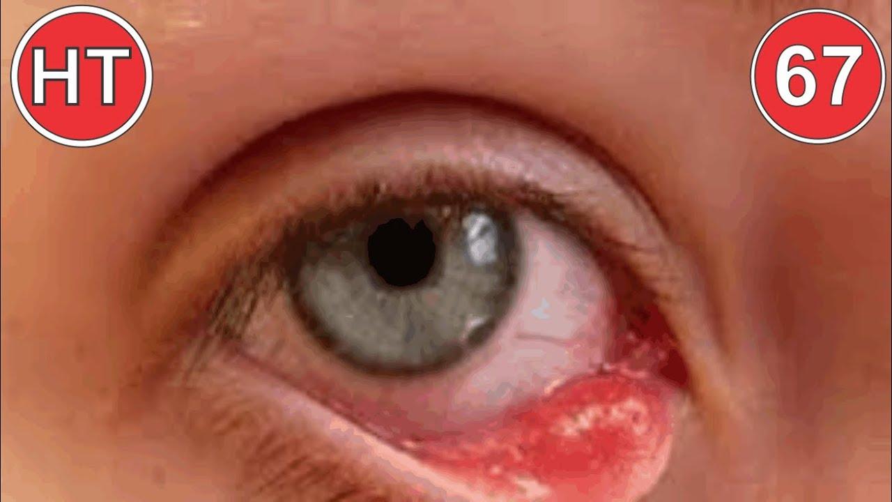 5 cách tự chữa lẹo mắt tại nhà | Mẹo chữa lẹo mắt