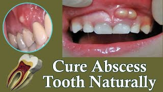 How To Get Rid Of A Gum Dental Abscess Oral Infection On GUMS Instant Pain Relief From Home