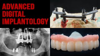 All on 4 / Sinus-lifting / Intraoral welding / Dziuba implant studio