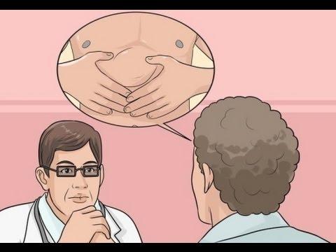 Que es una hernia estrangulada