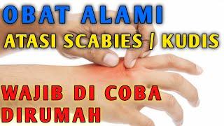 Hati - Hati Penyakit Kulit Menular SKABIES  !!.