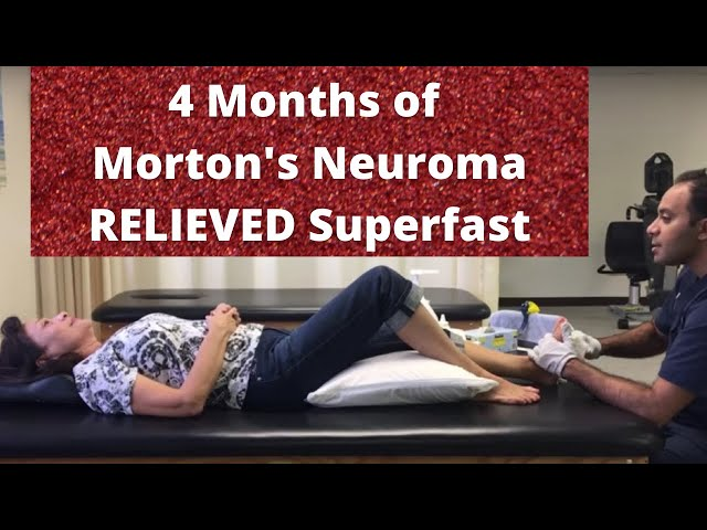 Amazing Relief for Morton's Neuroma (Nerve Entrapment)! (REAL RESULTS!!)